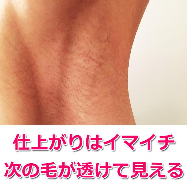 肌の下の毛が黒いブツブツに見える