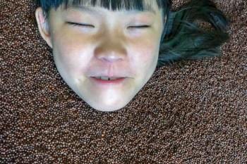 異位性皮膚炎患者找出路 丹羽療法 土佐清水病院 2018年 11歲女孩的治療