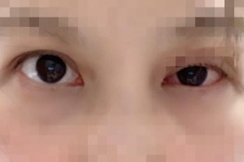 結膜炎感染到角膜 眼睛不僅難以睜開 視野模糊 視力變差 真是一段血淚史