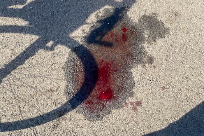 騎車也能撞成麵包超人 閃車自撞護欄 意外發生時怎麼做 牙齒連根拔起