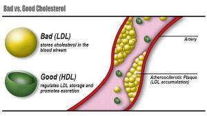 BadGood-Cholesterol