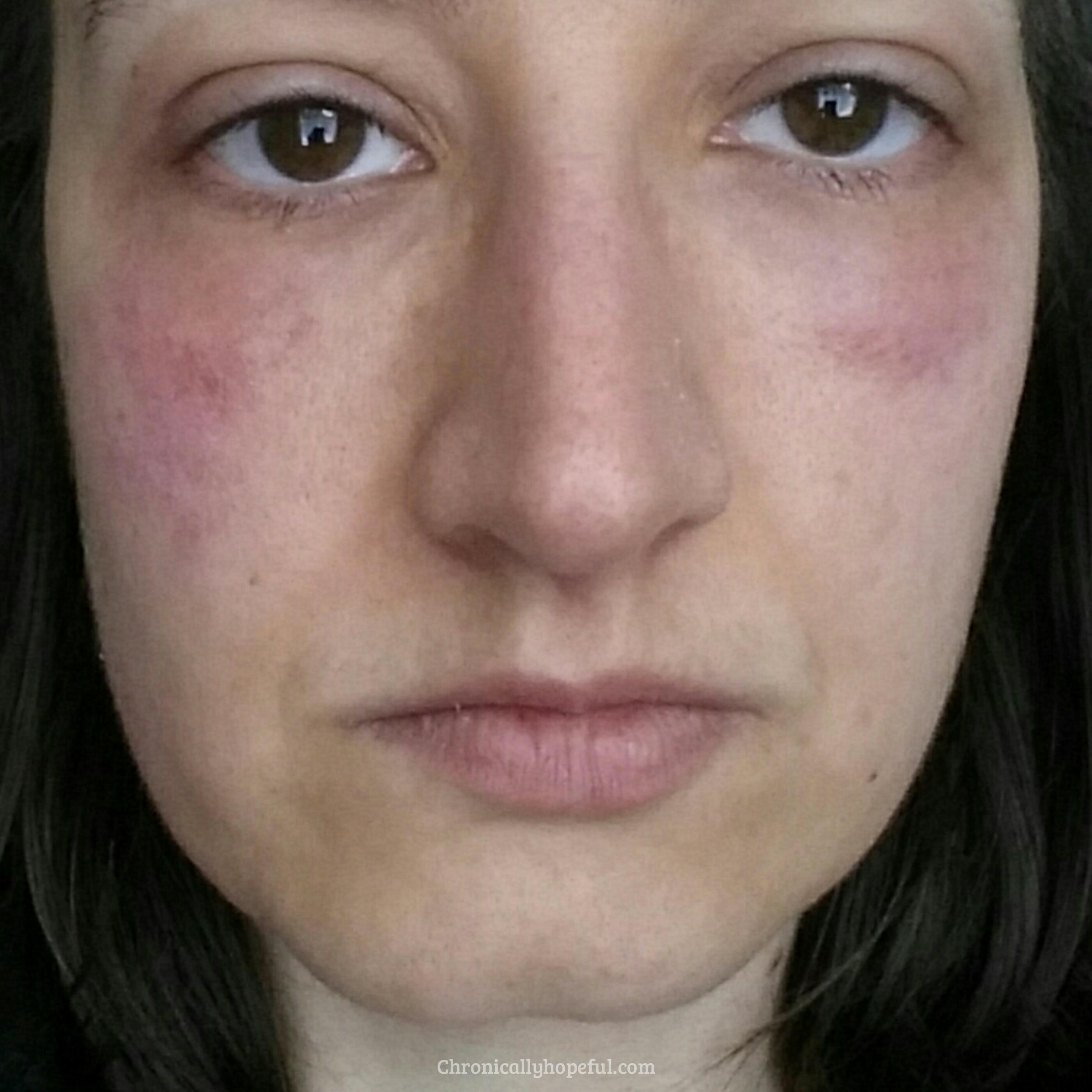 Rash On My Face, Histamine Intolerance, Chronically Hopeful