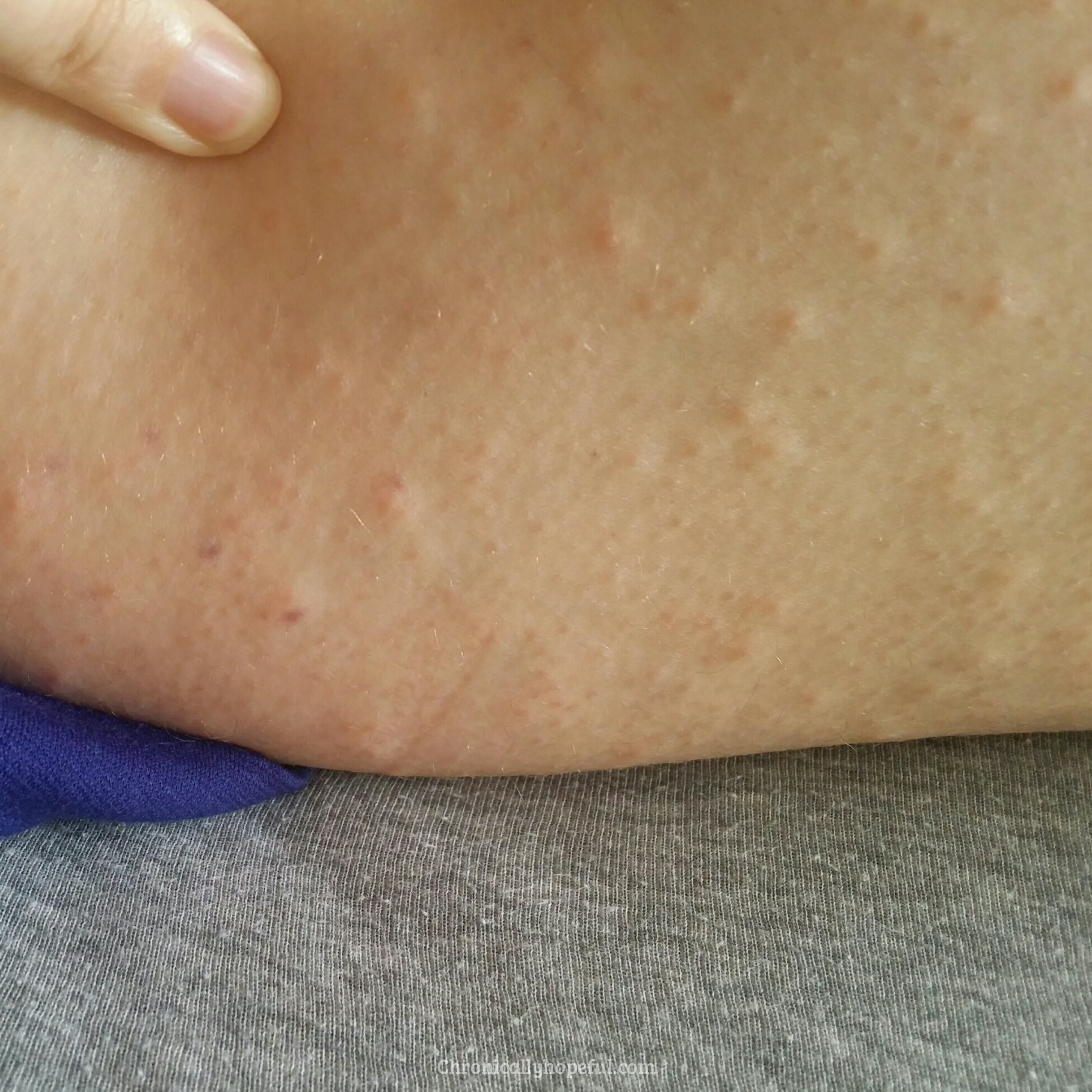 Red Spots All Over, Histamine Intolerance, Chronically Hopeful