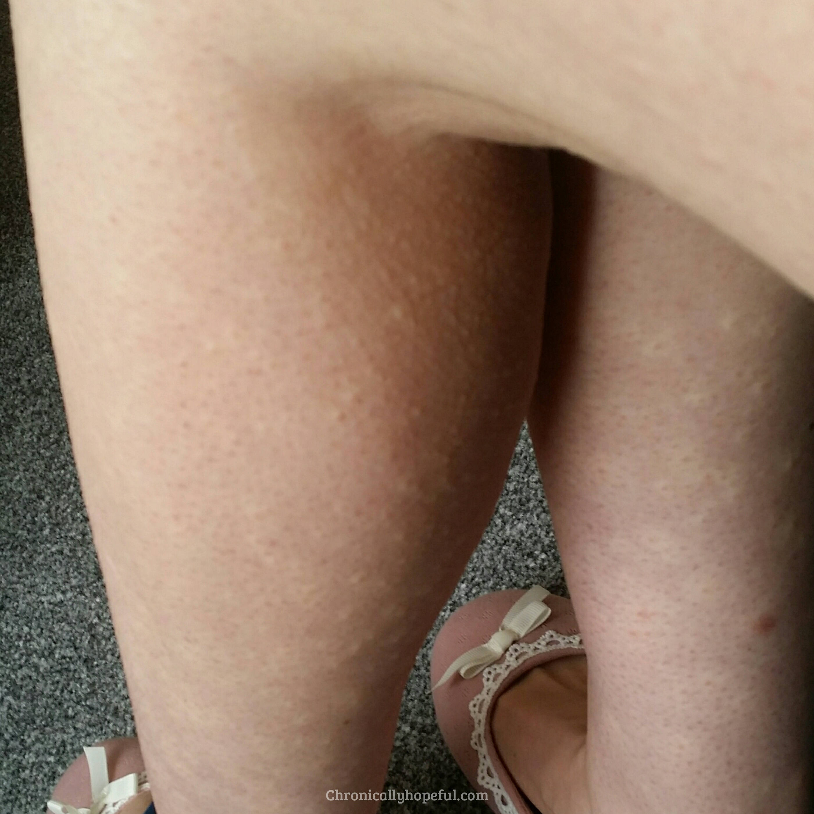 Daily Hives On Legs, Histamine Intolerance, Chronically Hopeful