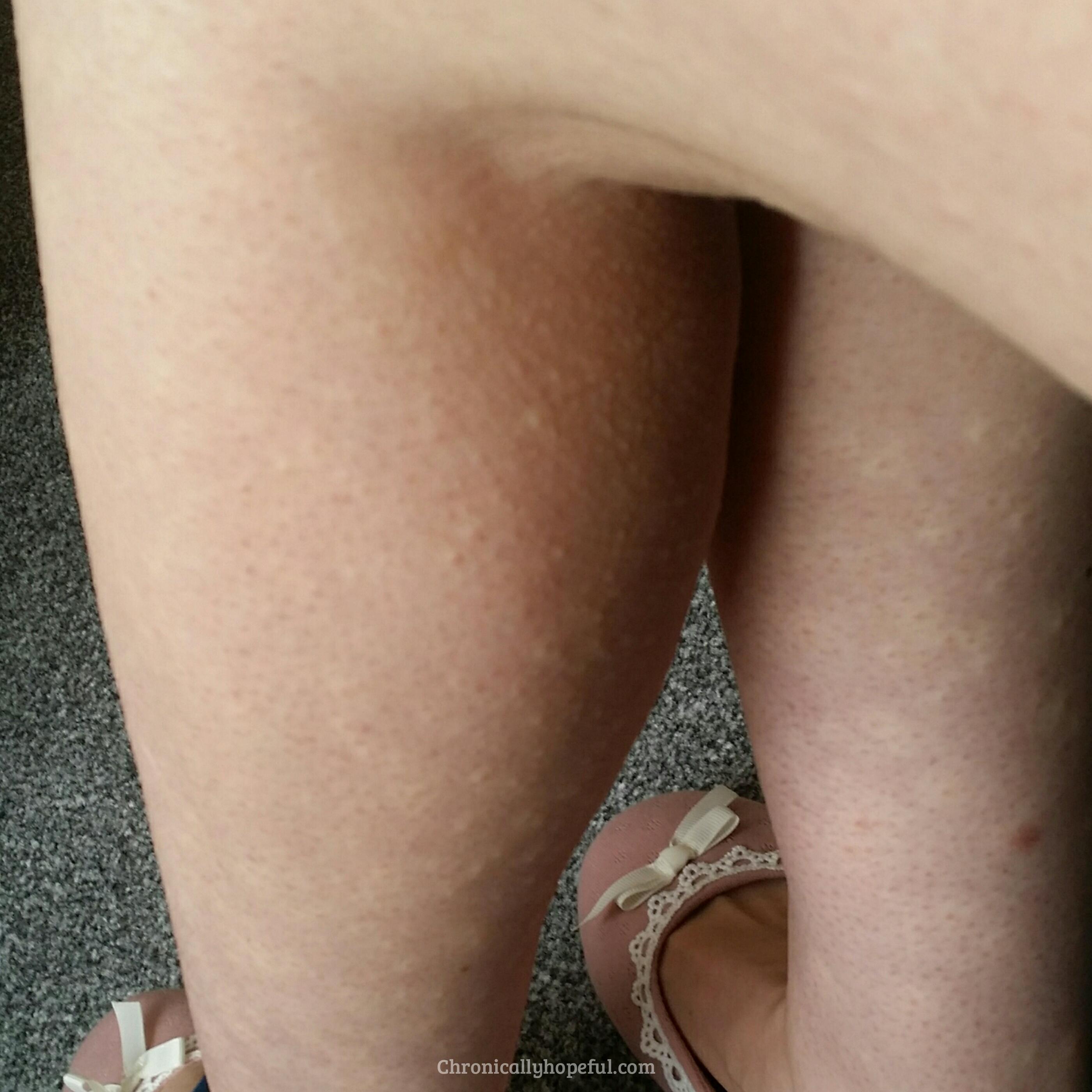 Daily Hives On Legs, Histamine Intolerance, Chronically Hopeful