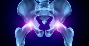 hip pain causes