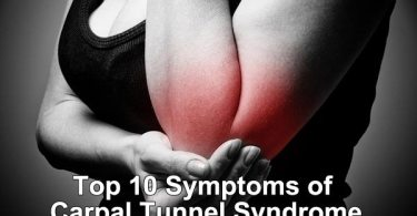 Top 10 Symptoms of Carpal Tunnel Syndrome