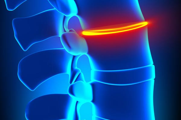 Best ways to Treat Degenerative Disc Disorder
