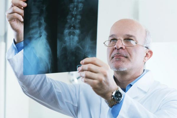 Degenerative Disc Disease Guide