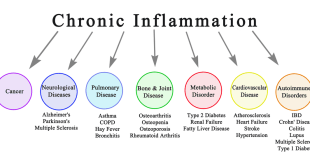 Trace #3 – Inflammation Presence