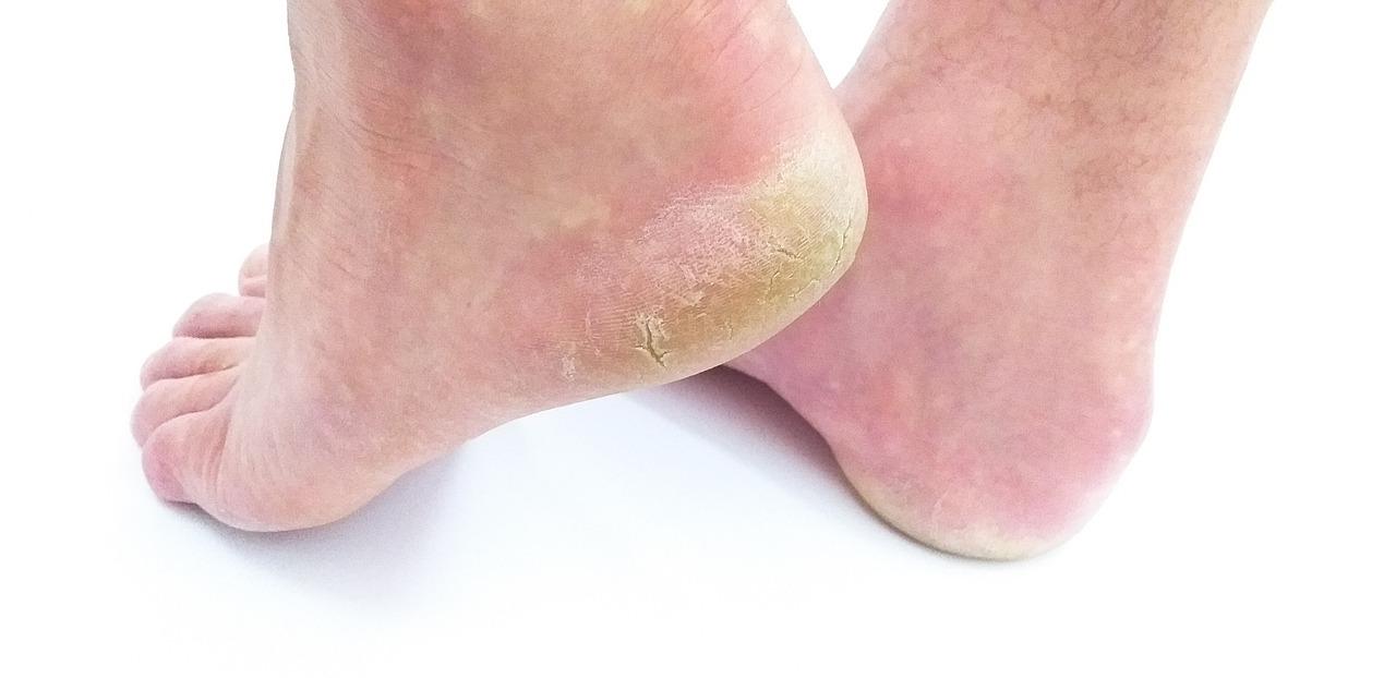 Control Fibromyalgia Foot Pain