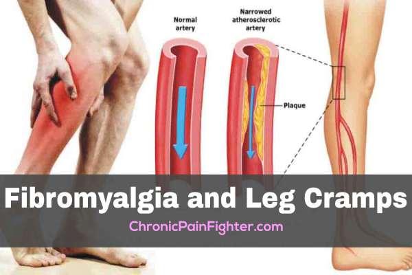Fibromyalgia and Leg Cramps