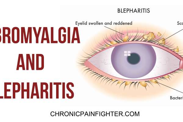 Fibromyalgia and Blepharitis