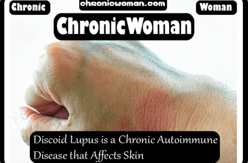 Discoid Lupus is a Chronic Autoimmune Disease that Affects Skin