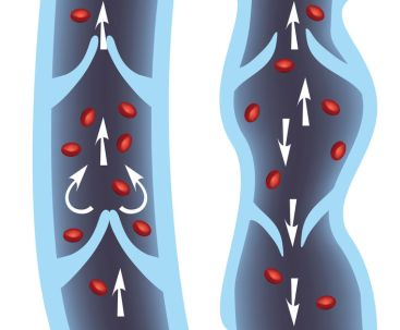 Si vous souffrez de jambes lourdes, l'aromathérapie peut soulager vos symptômes. Découvrez 6 huiles essentielles idéales pour faciliter le retour veineux