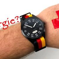 Was tun bei Uhren-Allergie? Hintergründe und Lösungen für Allergiker (Nickelallergie, Lederallergie, Titanallergie & Co.)