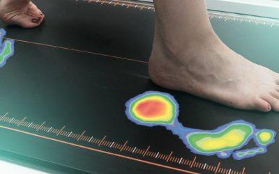 Πελματογράφημα για την αντιμετώπιση της πλατυποδίας