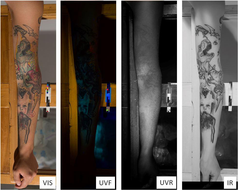 tatoo multispectral imaging