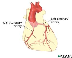 Coronary arteries of the heart, courtesy of ADAM