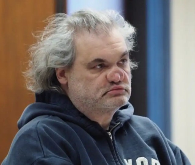 Artie Langes Nose Is A Disaster After Snorting Glass By Accident