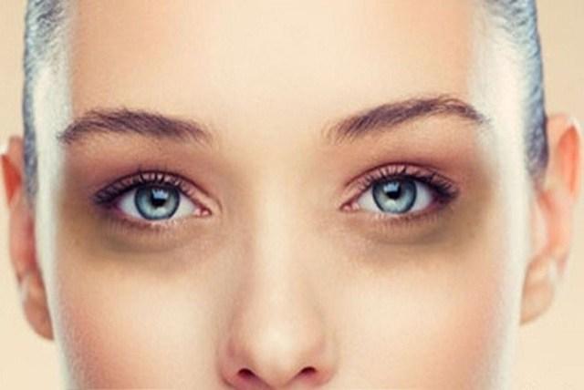 Thâm quầng mắt là gì