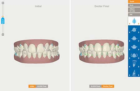invisalign bristol 3d model
