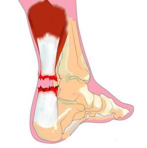 Réparation d'un tendon : schéma