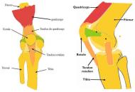 Schéma tendinite rotulienne