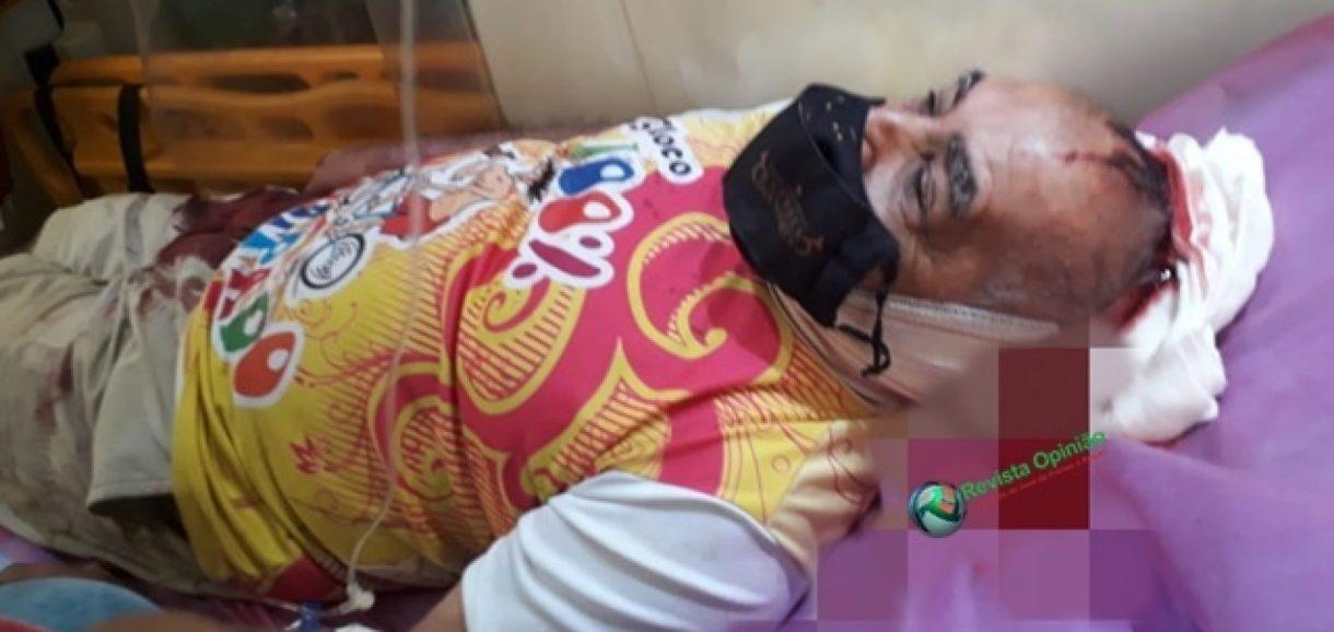 Músico é atingido com golpe de facão na cabeça após salvar vizinha de agressor no Piauí