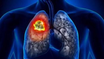 7 природних засобів, які зміцнюють ваші легені