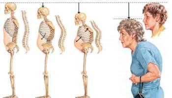 Як уникнути проблем із хребтом в похилому віці