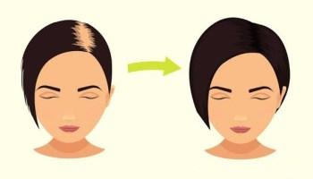 Харчова сода – справжня знахідка для прискорення росту волосся та зменшення частоти його миття!