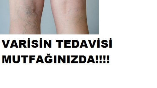 VARİSİN TEDAVİSİ MUTFAĞINIZDA