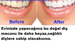 Bu Yağ İle Daha Beyaz Daha Sağlıklı Dişlere sahip Olacaksınız