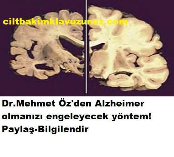 Doktordan Tavsiye Bunu Yaparsanız Alzheimer Olmazsınız