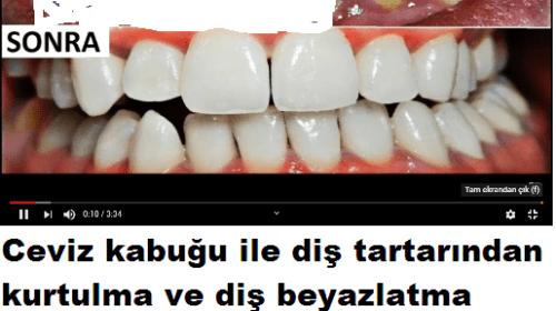 Dişlerdeki Tartar Ve Lekelere Son