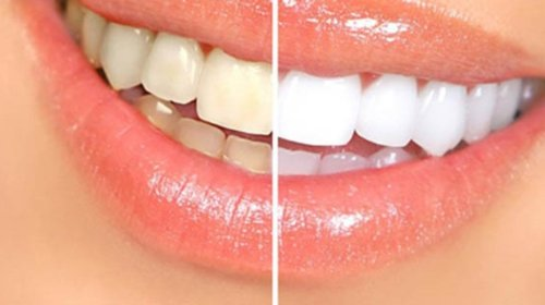 Doğal diş beyazlatıcı bu yöntemle dişleriniz  göz alacak