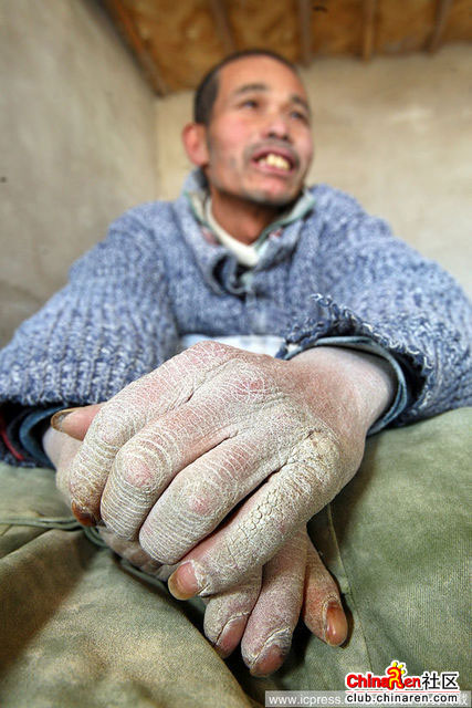 Xinjiang-Toksun-workers-007