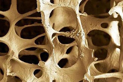 Osteoporosi in Cina