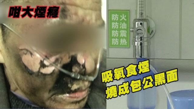 fumare con la maschera dell'ossigeno-incidenti stupidi in Cina