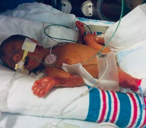 Ellie in the incubator at Sick Kids Hospital.