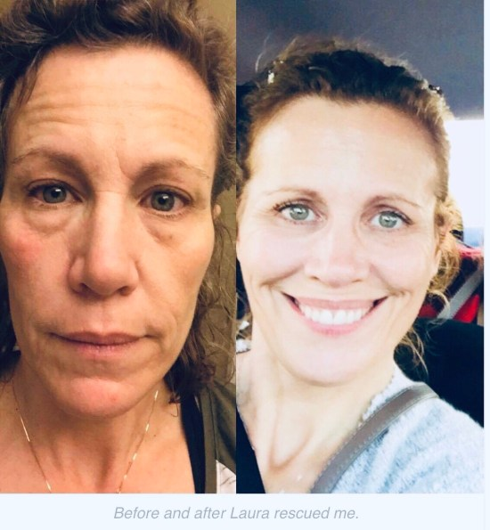 Cindy's before and after Rodan and Fields pictures