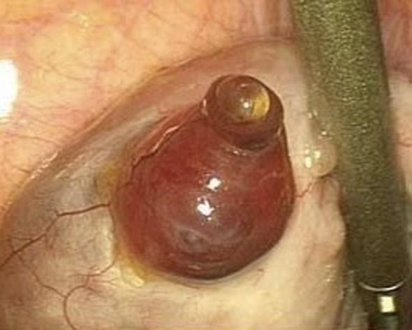 La liberación de un óvulo