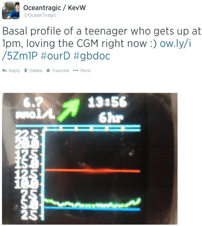 A sleeping teenager's basal profile