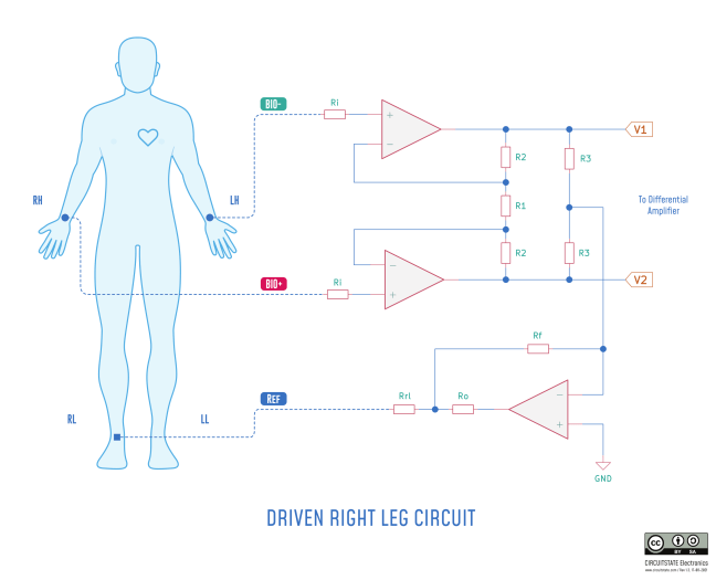 Driven Right Leg Circuit for ECG Measurement - Illustration by CIRCUITSTATE Electronics. CC-BY-SA