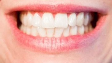 Top 7 Ways In Keeping Our Teeth Healthy