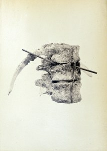 Photograph of the vertebra with a probe indicating the hole left by the bullet.