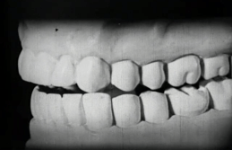 A plaster model of a set of teeth.
