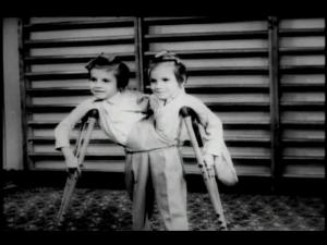 Young conjoined twins stand with crutches.