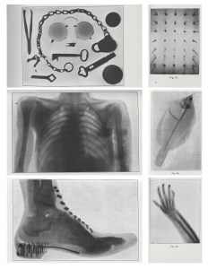 A group of X-ray's showing keys and eyeglasses, nails, a human chest, a fish, a foot in a shoe and a hand and arm.